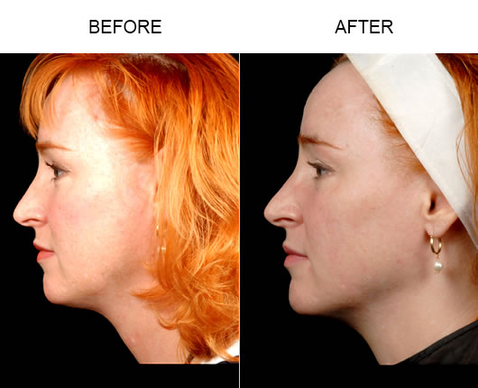 Neck & Chin Liposuction Before & After