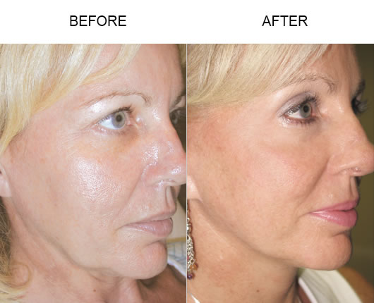 Browlift Before & After