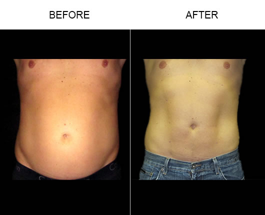 Smartlipo Before & After
