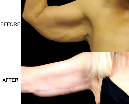 Armlift Before & After