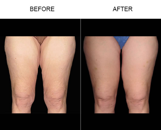 Thigh Lift Before & After