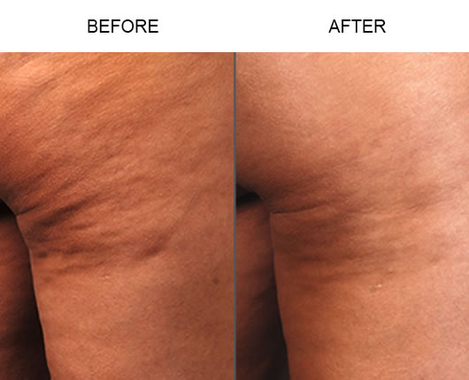 Cellulaze Before & After