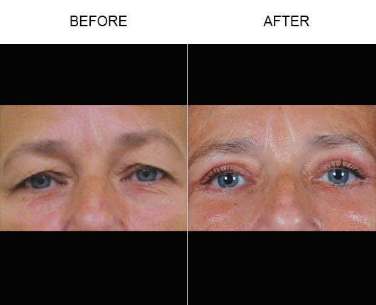 Upper Eyelid Before & After