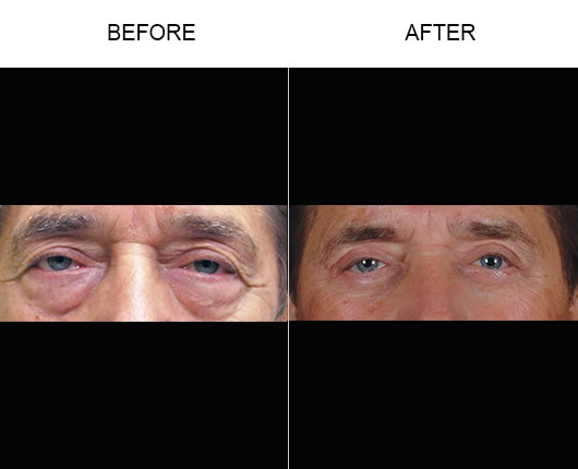 Lower Eyelid Before & After