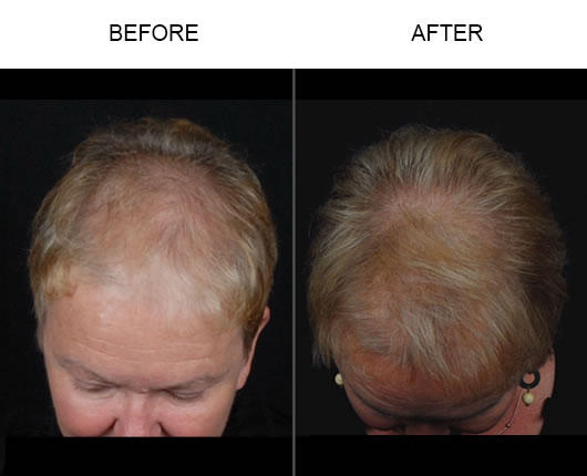 NeoGraft Before & After