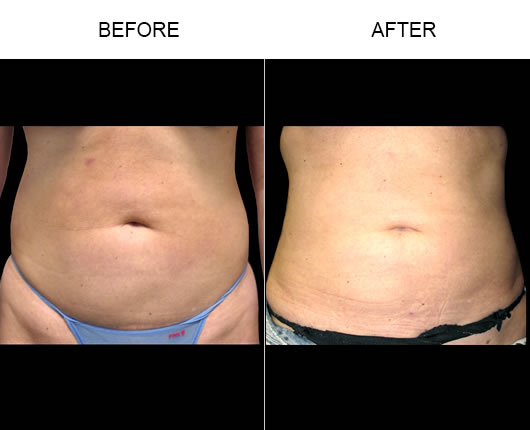 Aqualipo® Before & After