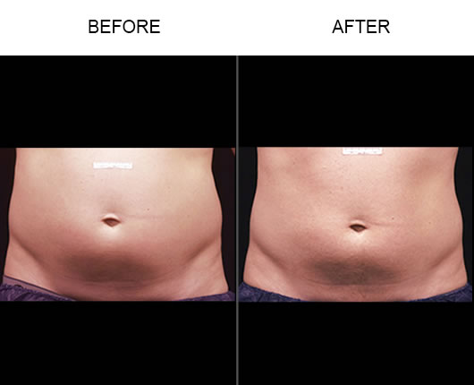 Liposonix Before & After