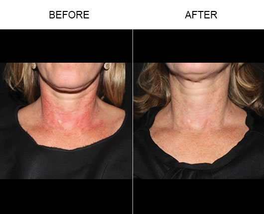 Laser Vein Treatment Before & After