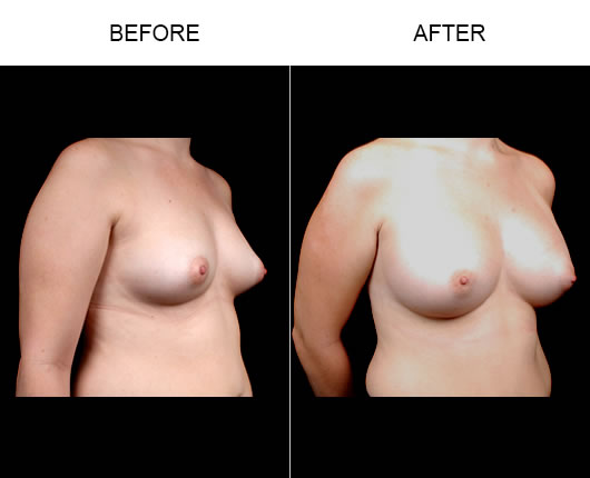 Breast Augmentation Before & Afters