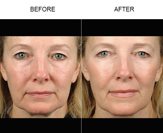 Thermage Face Before & After