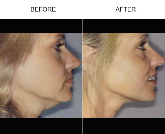 Thermage® Face Before & After