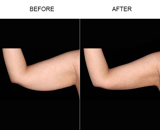 Bodytite Before And After