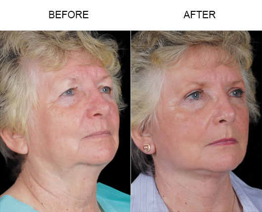 FaceLift / Mini FaceLift Before & After