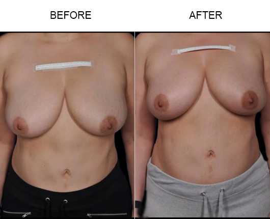 BreastTite / ThermiBreast® Before & After