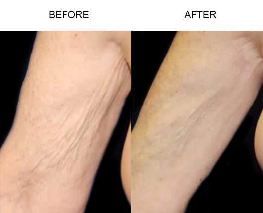 Thermitight® Body Contouring Before And After