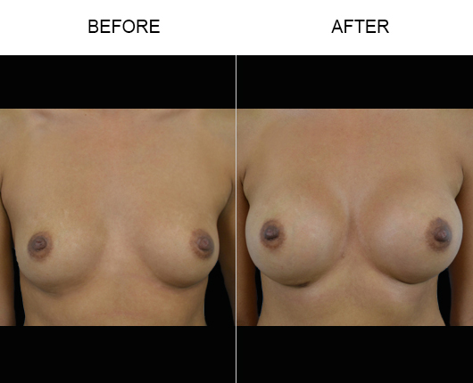 Breast Augmentation Surgery Results