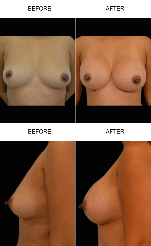Breast Augmentation Surgery Before & After