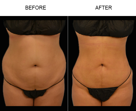 Liposuction Surgery Before & After