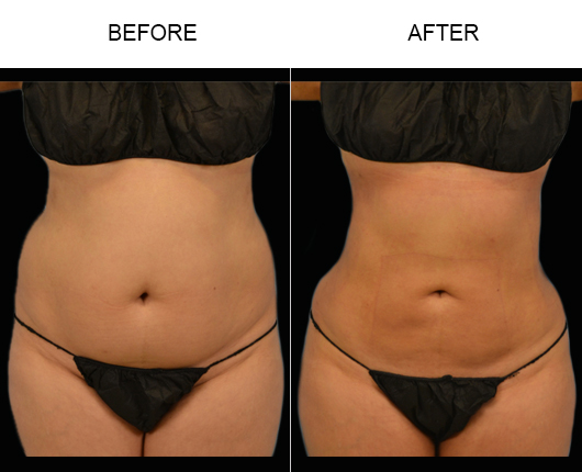 Before & After Liposuction Surgery
