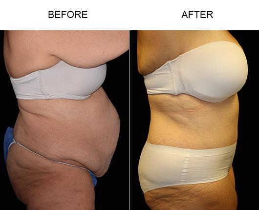 Florida Abdominoplasty Treatment Before & After