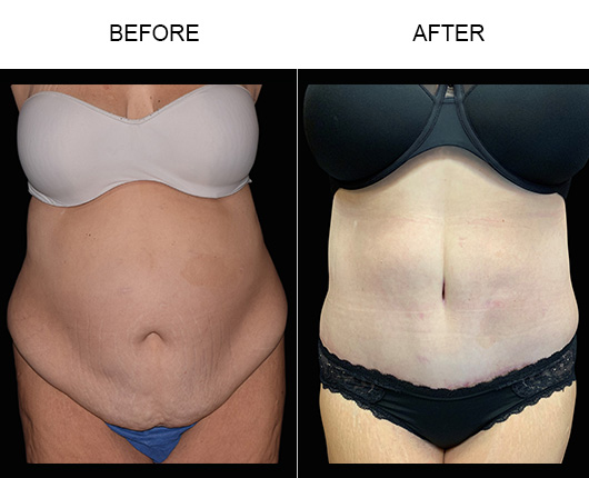 Before And After Abdominoplasty Treatment In Florida