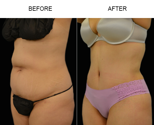 Low Cut Tummy Tuck Before And After