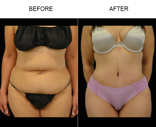 Low Cut Tummy Tuck Before & After