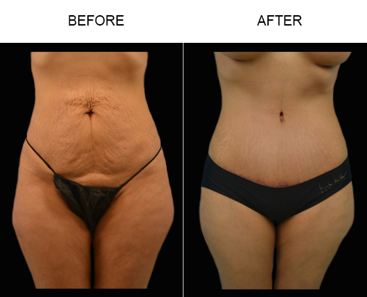 LowCut Abdominoplasty Before And After