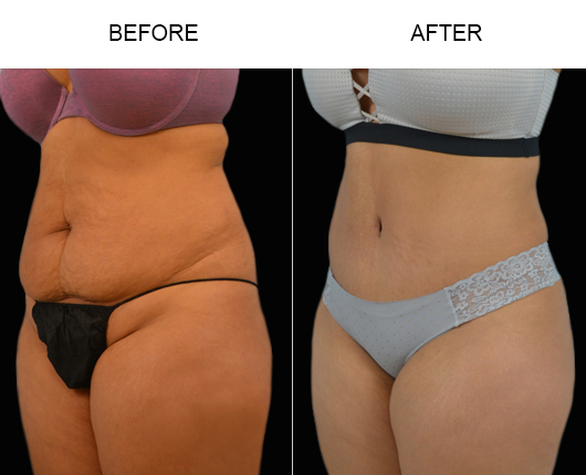 LowCut Abdominoplasty Results