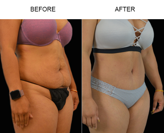 Low Cut Abdominoplasty Before And After