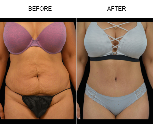 Low Cut Abdominoplasty Before & After