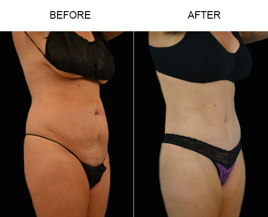 Low Cut Abdominoplasty Results
