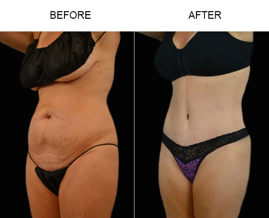 Before And After LowCut Tummy Tuck