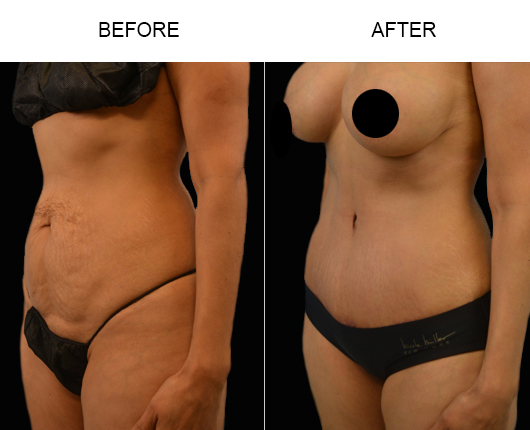 Low Cut Tummy Tuck Results