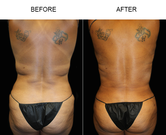 Florida Liposuction Before & After