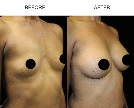 Before & After Breast Augmentation Treatment