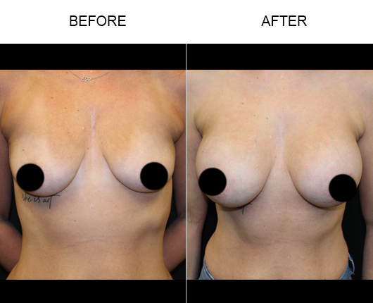 Florida Breast Augmentation Before And After