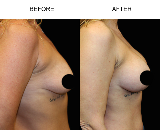 Before And After Breast Augmentation In Florida