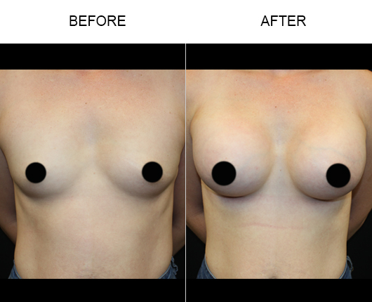Before & After Breast Augmentation In Florida