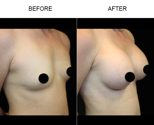 Florida Breast Augmentation Results