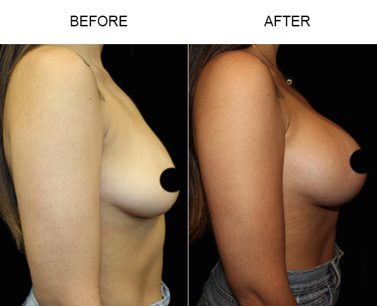 Before & After Breast Augmentation Surgery In Florida