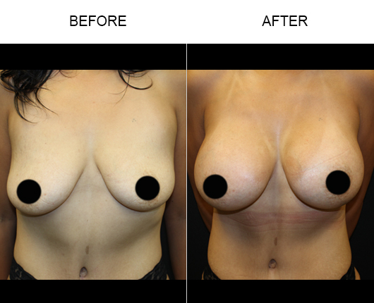 Florida Breast Augmentation Surgery Results
