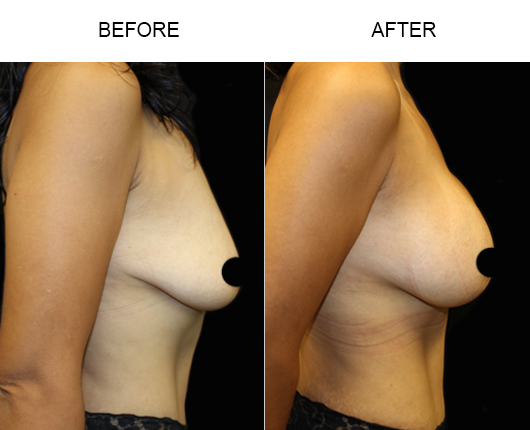 Florida Breast Augmentation Treatment Before & After