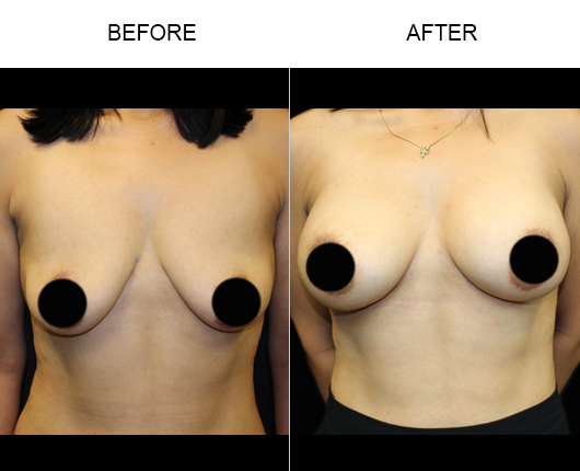 Before And After Breast Augmentation Treatment In Florida