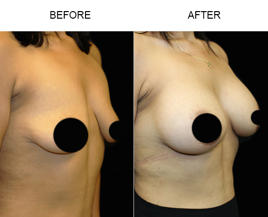 Before & After Breast Augmentation Treatment In Florida