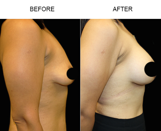 Florida Breast Augmentation Treatment Results