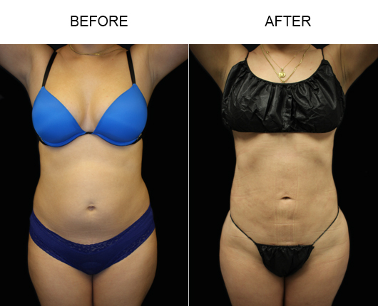 Florida Liposuction Surgery Results