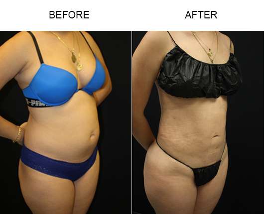 Florida Liposuction Treatment Before And After