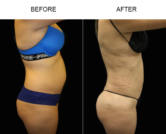 Florida Liposuction Treatment Before & After