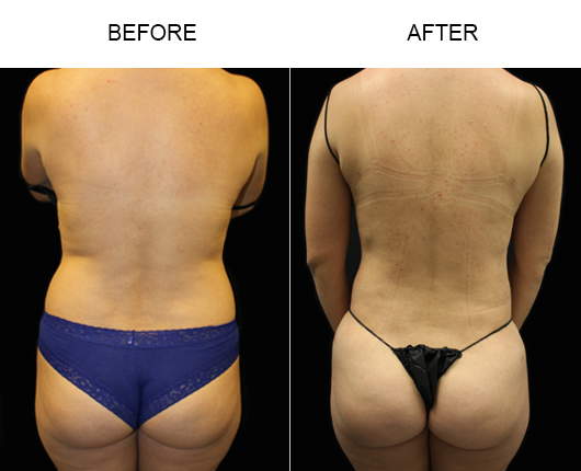 Before And After Liposuction Treatment In Florida